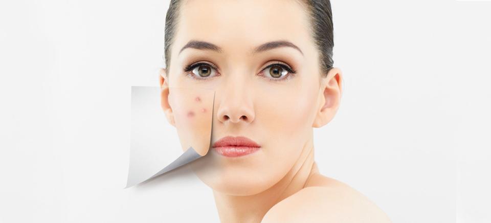 cómo cuidar la piel después de los 30
